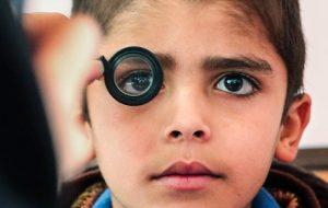 تغییرات برنامه زمانی غربالگری بینایی کودکان ۳ تا ۶ ساله
